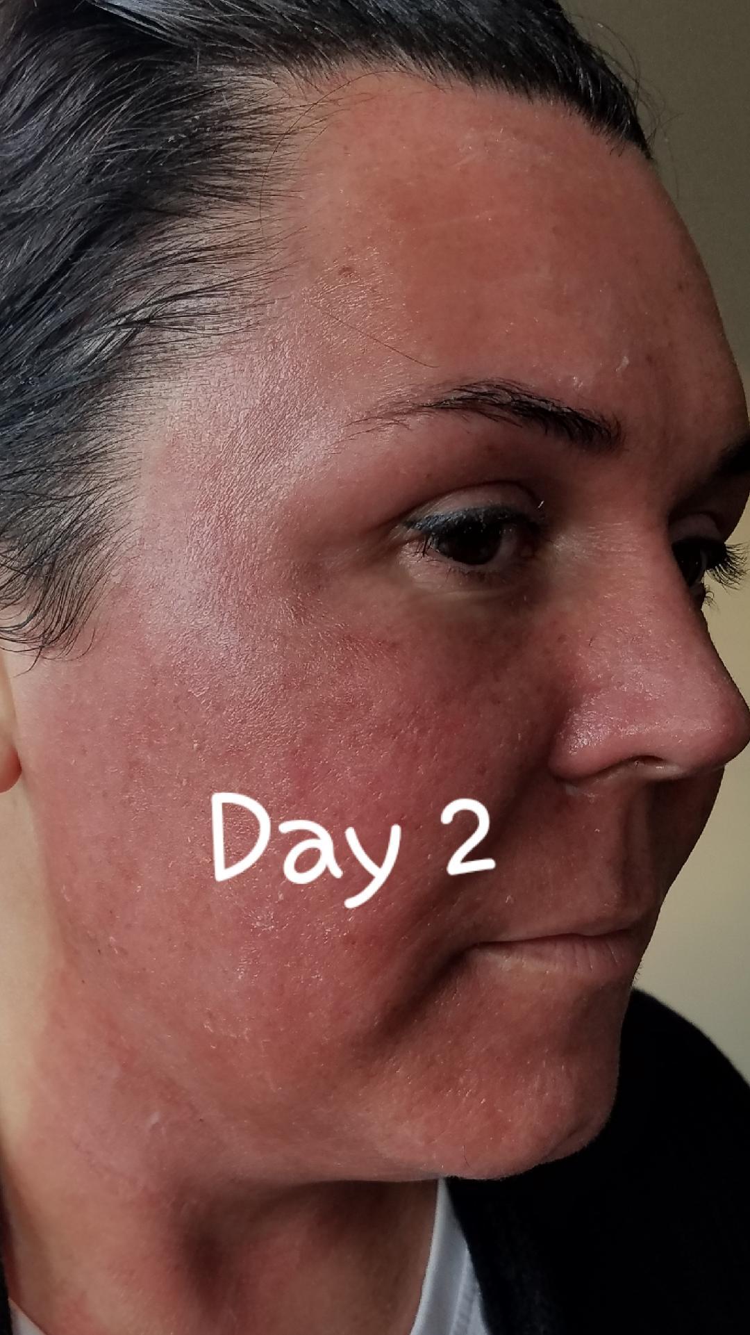 Elaine Brennan Skin Renewal Day 2