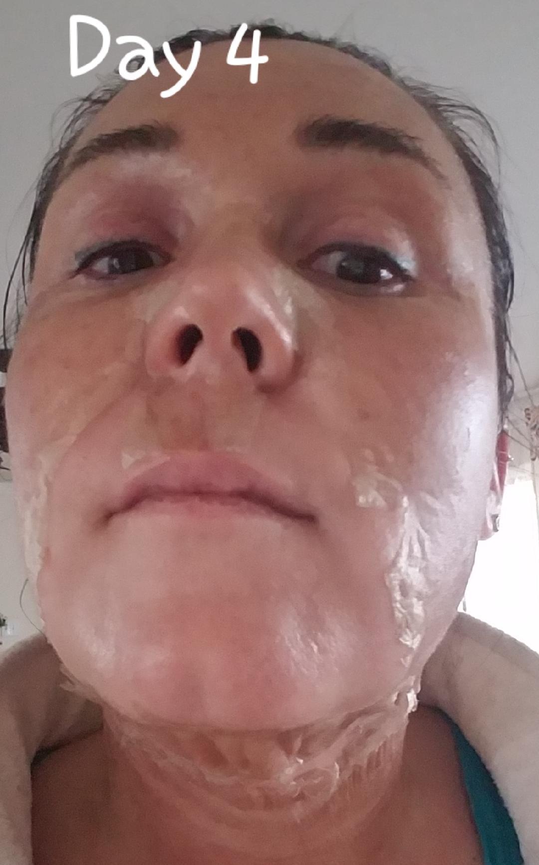 Elaine Brennan Skin Renewal Day 4