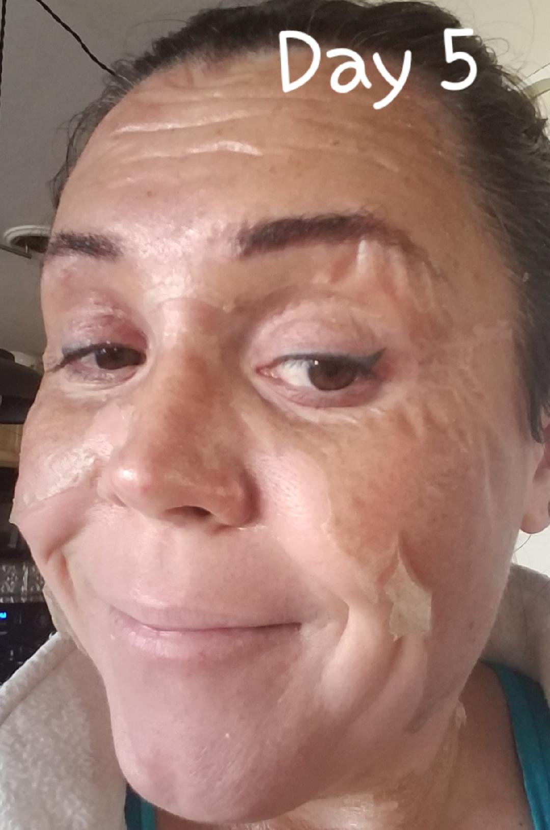 Elaine Brennan Skin Renewal Day 5