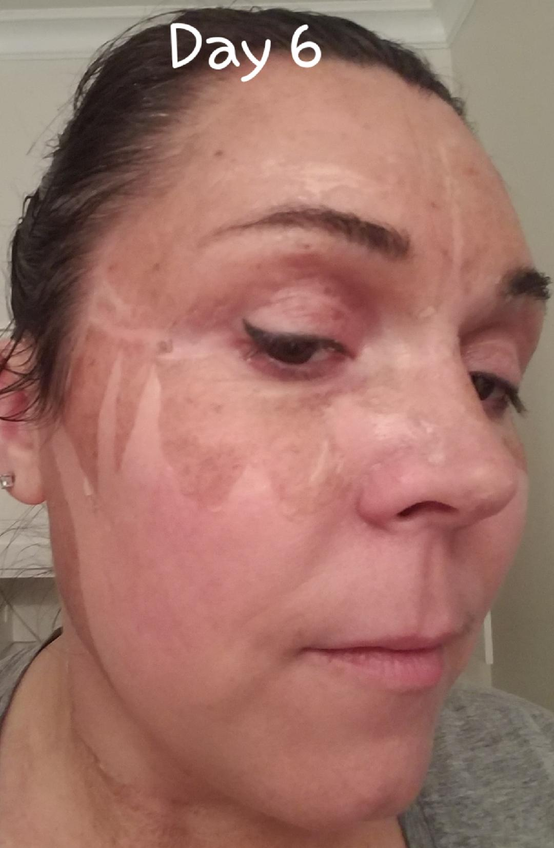 Elaine Brennan Skin Renewal Day 6
