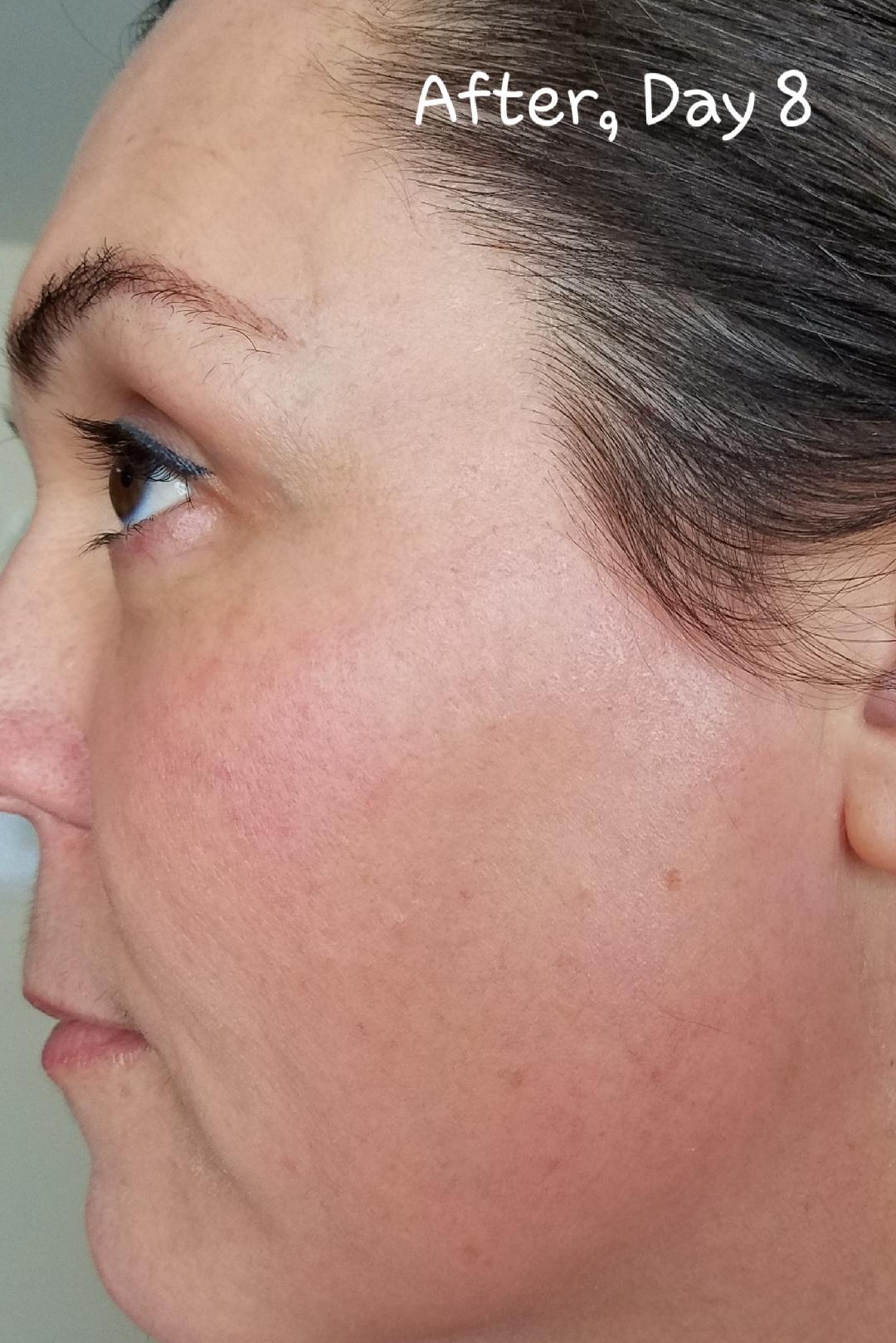 Elaine Brennan Skin Renewal Day 8