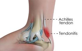 Achilles Tendonitis -