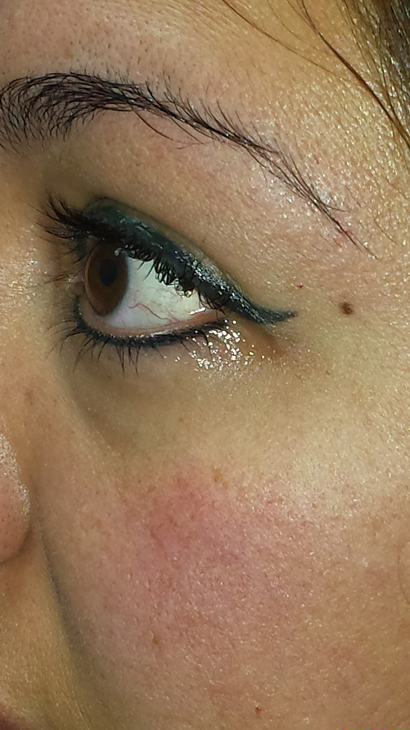Thick eyeliner swells quite a bit at time of service. It is common for it to seem 20-30% less once it has healed.