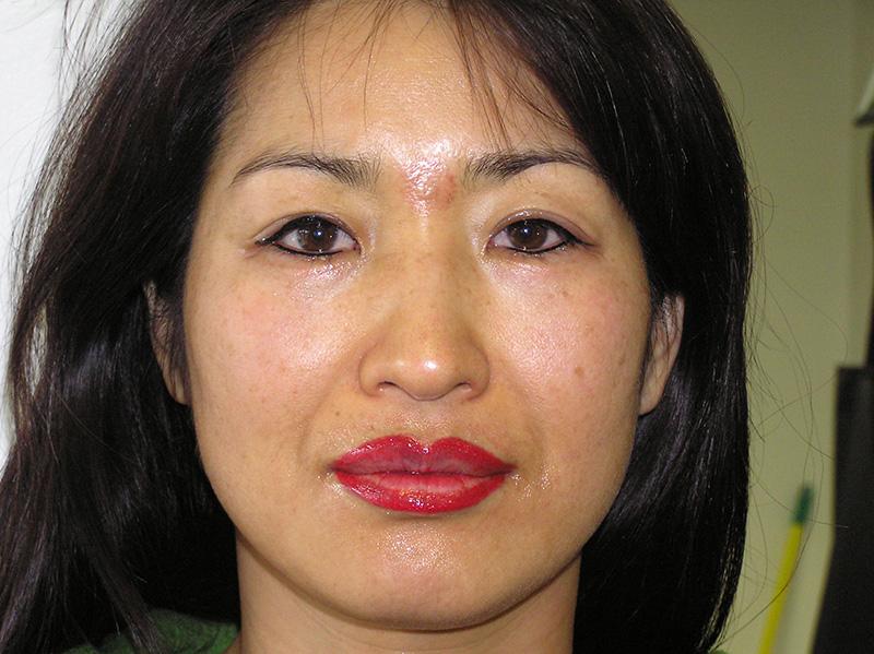 After – Lip Blend