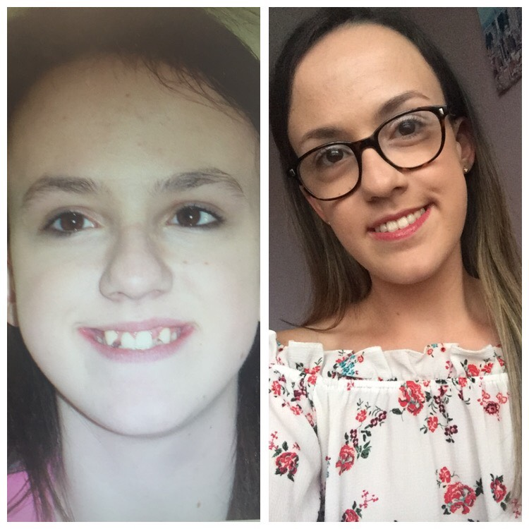 Left: 14 Years Old, Pre-Surgery and Braces, Right: Post-Surgery and Braces