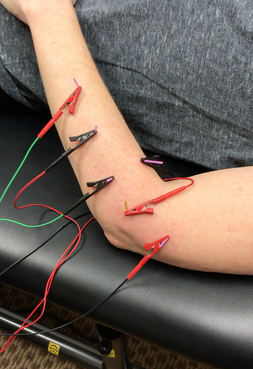Dry Needling for elbow pain, tennis elbow