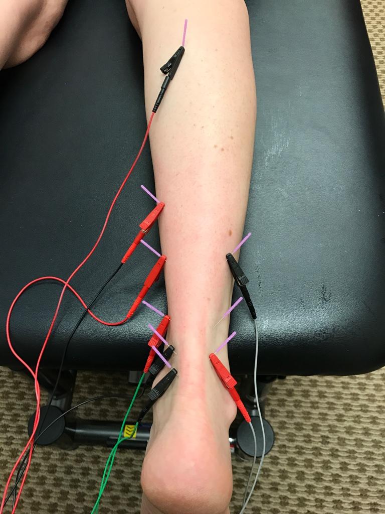 Dry Needling for achilles tendonitis, calf pain