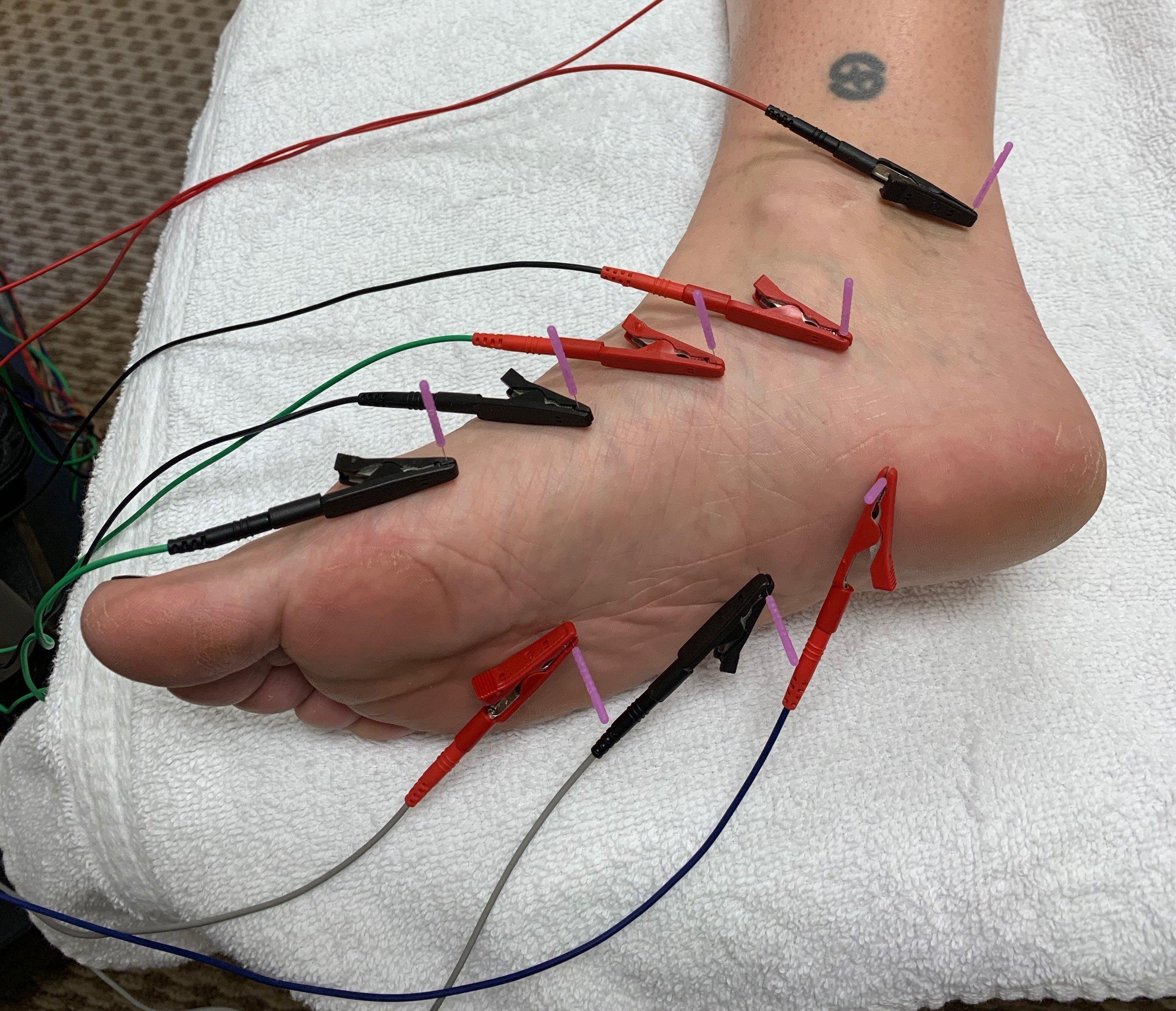 Dry Needling for plantar fasciitis, foot pain, heel pain