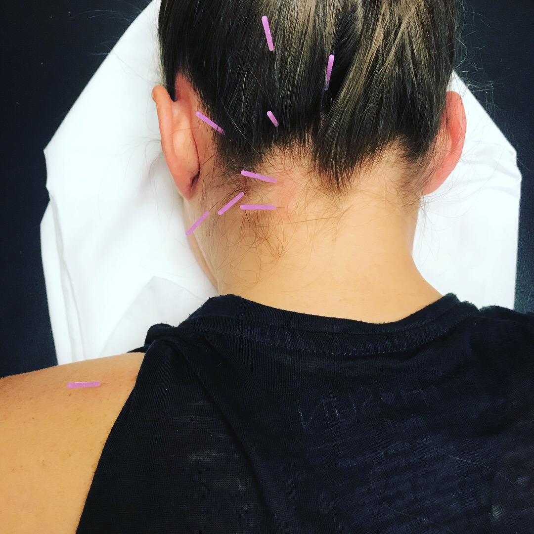 Dry Needling for headaches, neck pain, migraines