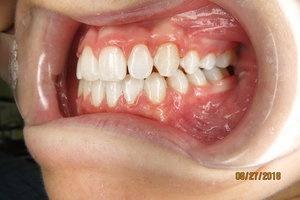 Orthodontic Facial Photo 9.JPG
