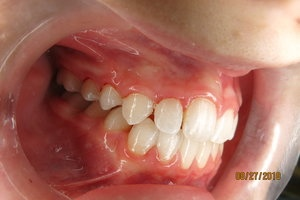 Orthodontic Facial Photo 10.JPG