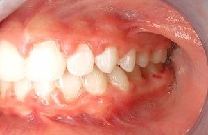 Orthodontic Facial Photo 12.JPG