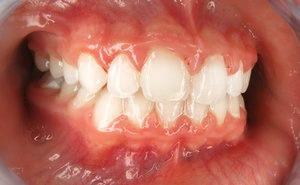Orthodontic Facial Photo 13.JPG