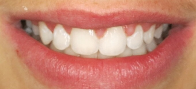Orthodontic Facial Photo 11.JPG