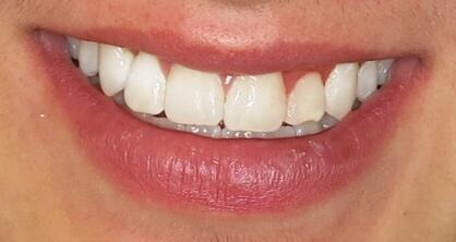 Orthodontic Facial Photo 14.JPG