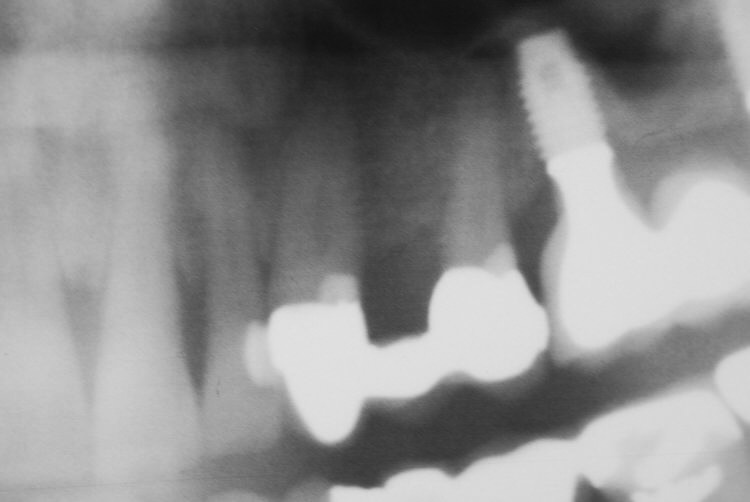 Multiple Implant Periapical 1.JPEG