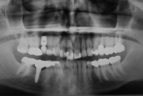 Multiple Implant Panoramic 1.JPEG