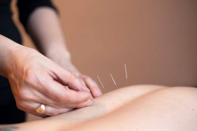 All About Acupuncture: How to know if it's right for you