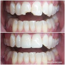 Before & after crowns