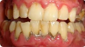 Plaque and tartar build-up