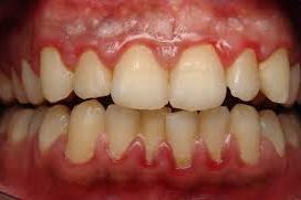 Red & swollen gums