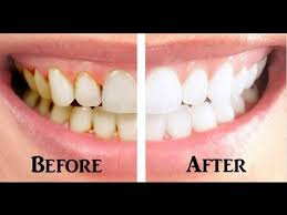 gum disease treatment before and and after.jpg