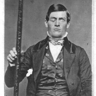1-Phineas-Gage_Q320.jpg