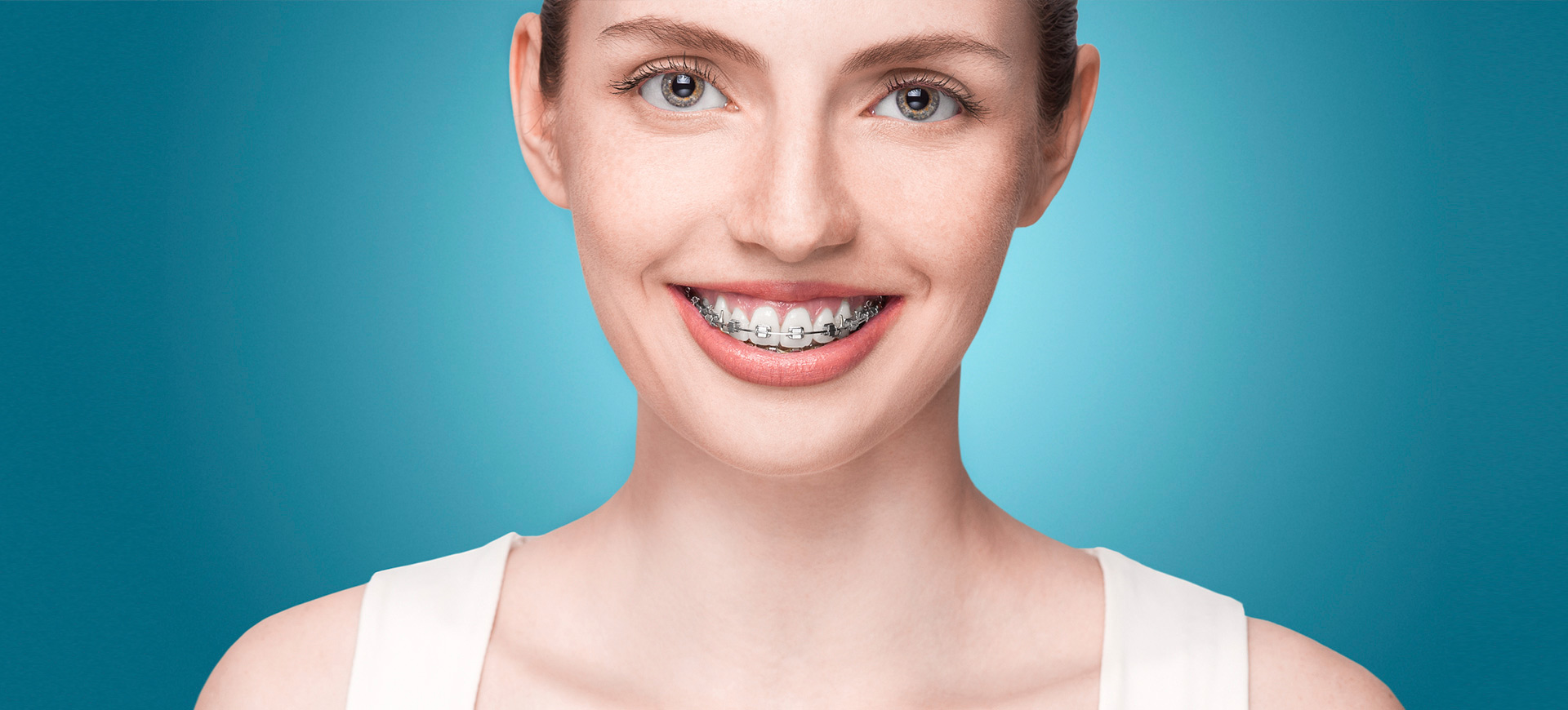 Fixed Braces - These are also known as 'traintracks'. They are glued on to the teeth and should not be removed.