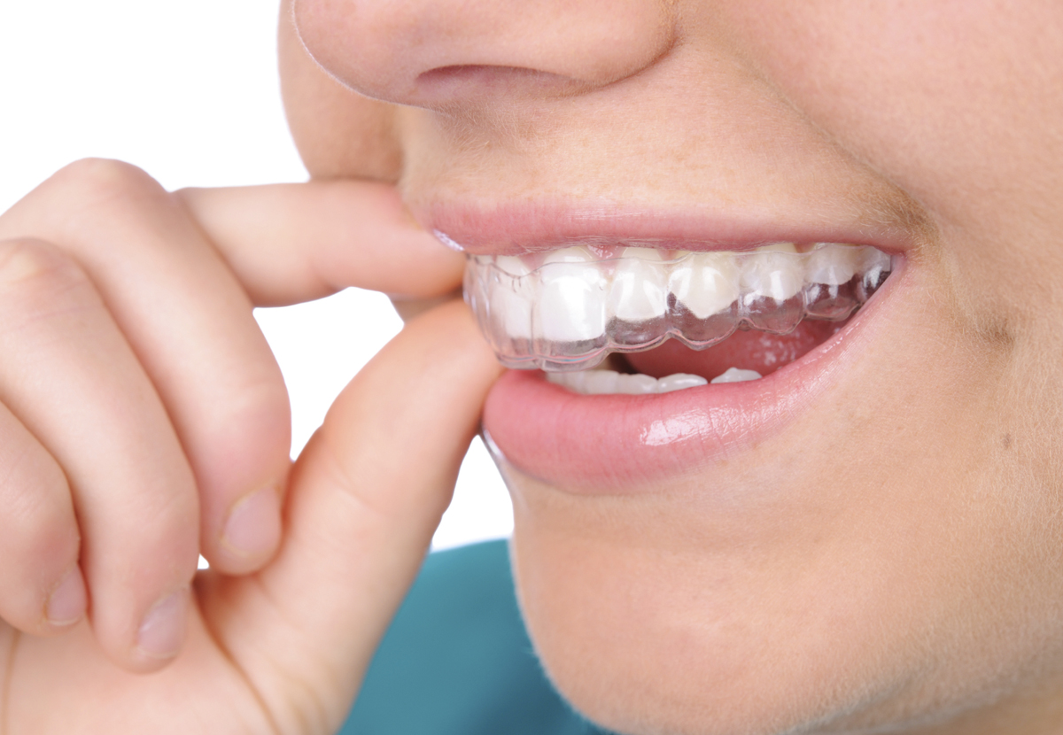 Invisalign - Invisalign employs a technique that straightens teeth using a series of clear aligners
