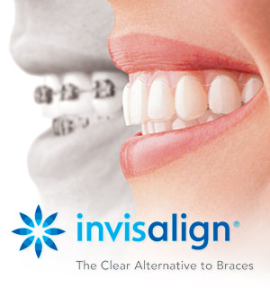 - Improved Oral Hygiene — With an orthodontic appliance that is removable, you will be able to clean your teeth much more easily than if you were wearing metal braces.A Discreet Look — If you consider your orthodontic treatment to be a private matter, or simply feel that metal braces don't fit with your self-image, a practically invisible form of orthodontic treatment might suit you.More Dietary Choices — To protect metal wires and braces, some diet modifications are necessary. With clear aligners, you can still bite into an apple or a crispy pizza crust.Comfort — The soft, flexible material of which Invisalign is made will not irritate the soft tissues of the mouth, as metal wires and braces can.Teeth-Grinding Protection — If you have a teeth-grinding or clenching habit, clear aligners can function as thin nightguards that will protect your teeth from excessive wear.