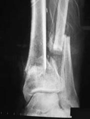 foot_ankle_arthritis.jpg