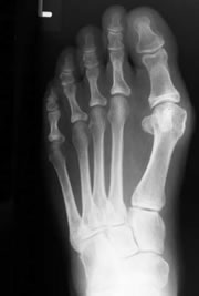 foot_ankle_bunion1.jpg