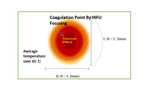Coagulation Zone & Temperature