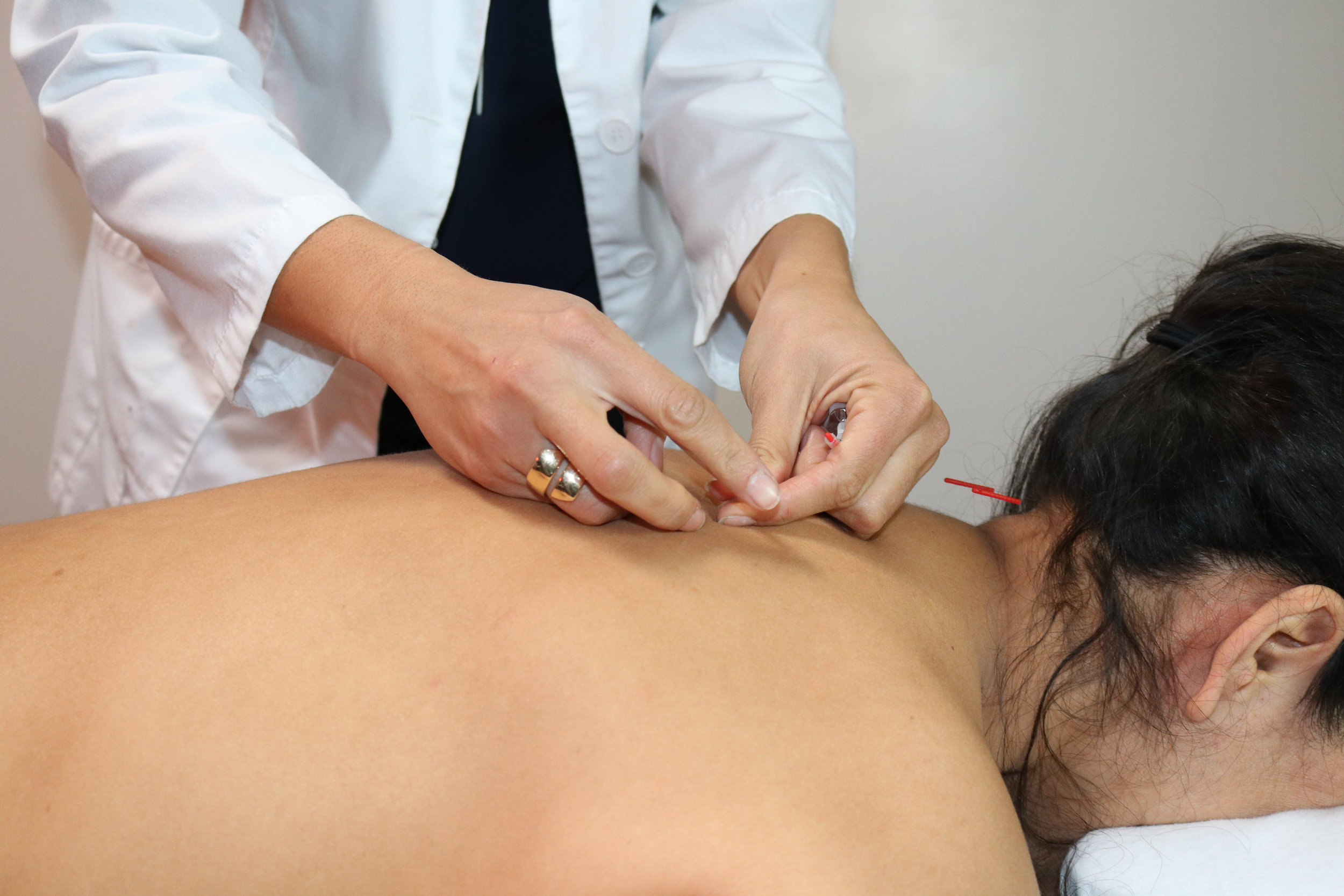 Services Acupuncture Pic.JPG