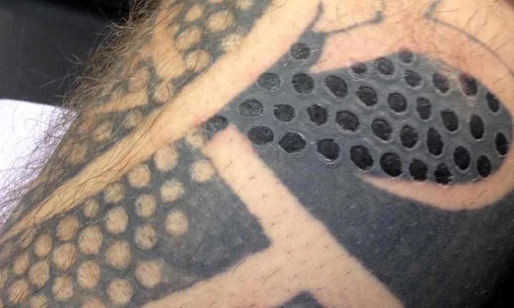 BlackDiamondTattooLA-Tattoo-removal