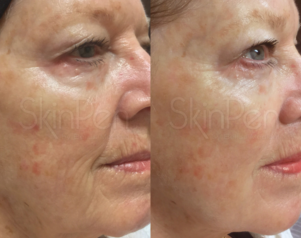 Gender: female / Age: 72 / Treatments: 2 / Frequency: monthly