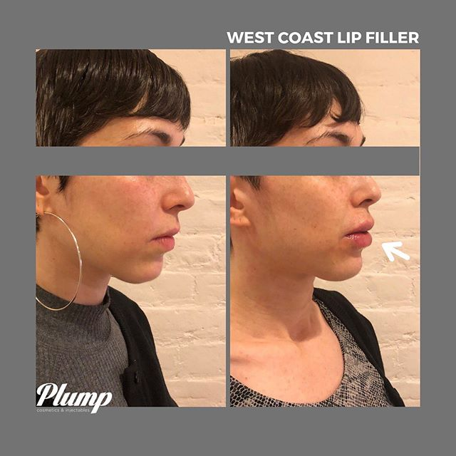 Love thy lips. 👄 You may recognize this client from an earlier post on a few areas she targeted with filler (cheeks, folds + chin). She returned to add a lil' umph to her lips and we think she looks fantastic. ✨ #getplump #lipfiller
