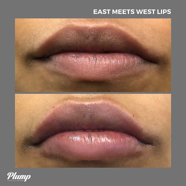 East Meets West: our *in between* lip filler option. 👄 This treatment creates a subtle Plump with volume increase using Juvederm Ultra and Ultra Plus XC and our combination injection technique. 💉 #getplump