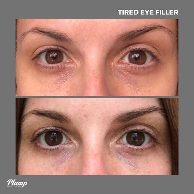 Brighter and lighter: our *Tired Eye* treatment targets dark, sunken and baggy under eye circles to bring freshness to the face. 👼🏼 Pricing starts at $850 and results last 1+ years. ✨ #getplump