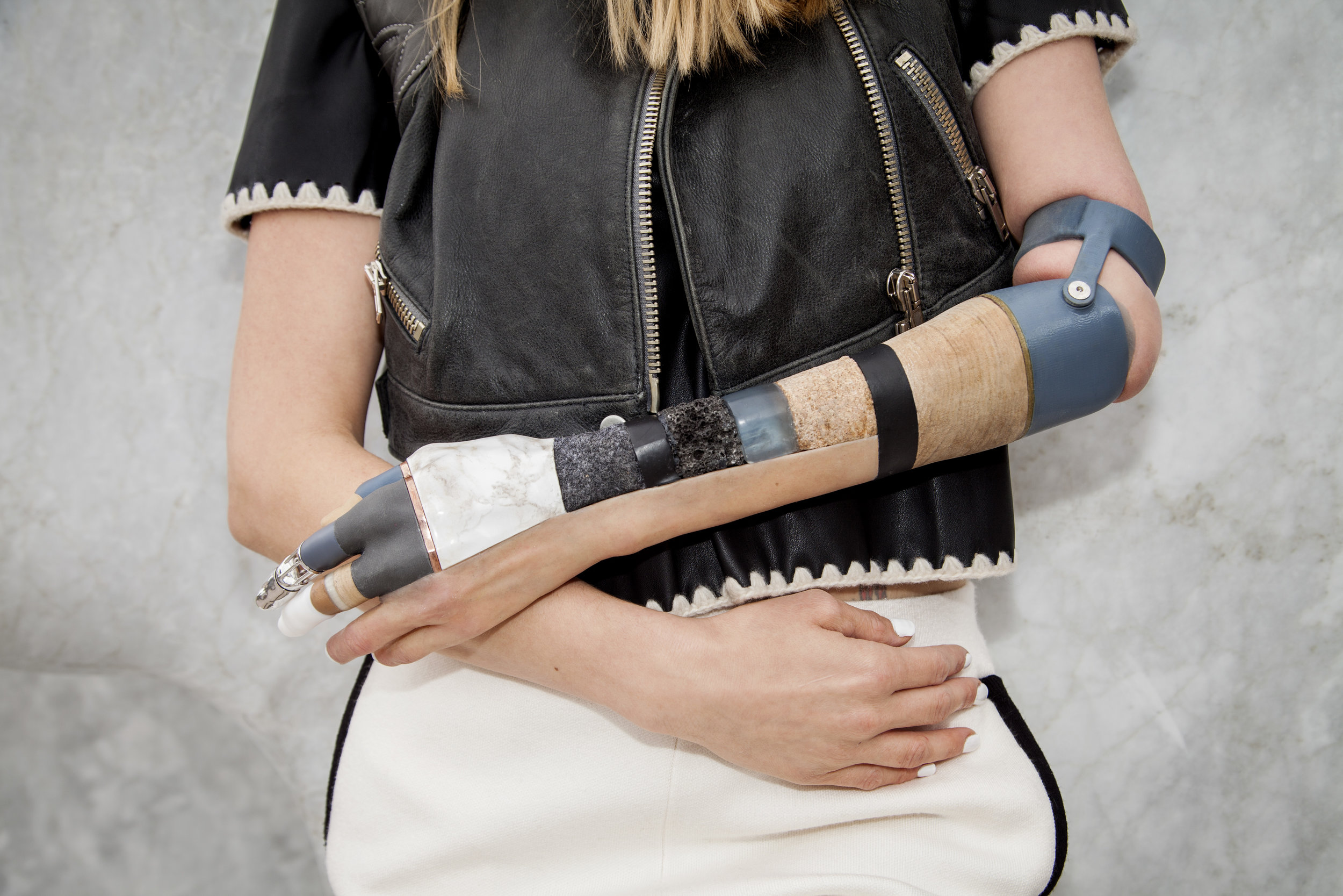 Materialise Arm for Kelly Knox. Photo by Simon Clemenger
