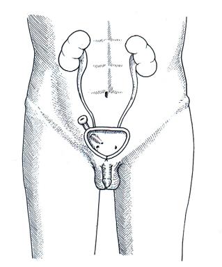 Copie de Cystostomie trans-appendiculaire ou intervention de MITROFANOFF