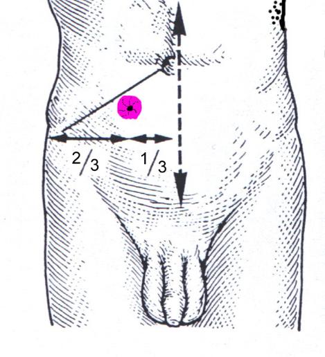 Stomie urinaire