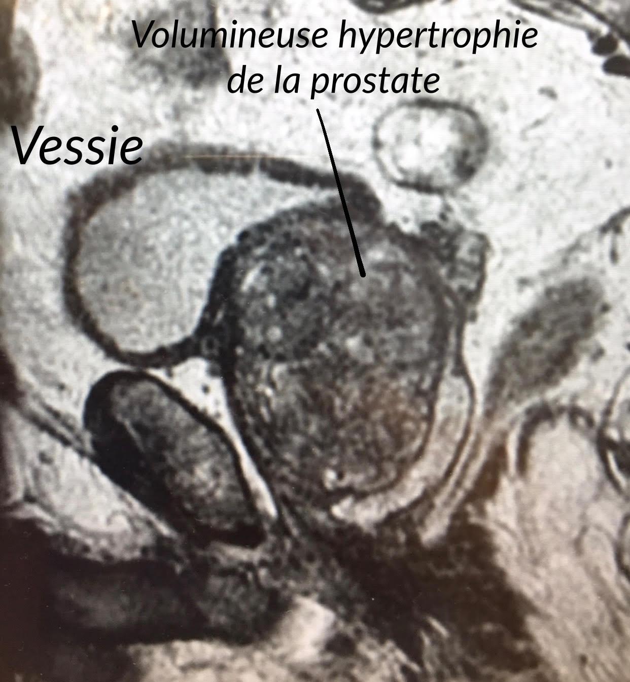 - IRM d'un volumineux adénome de prostate de 195 grammes avant une énucléation prostatique laser (HoLEP)