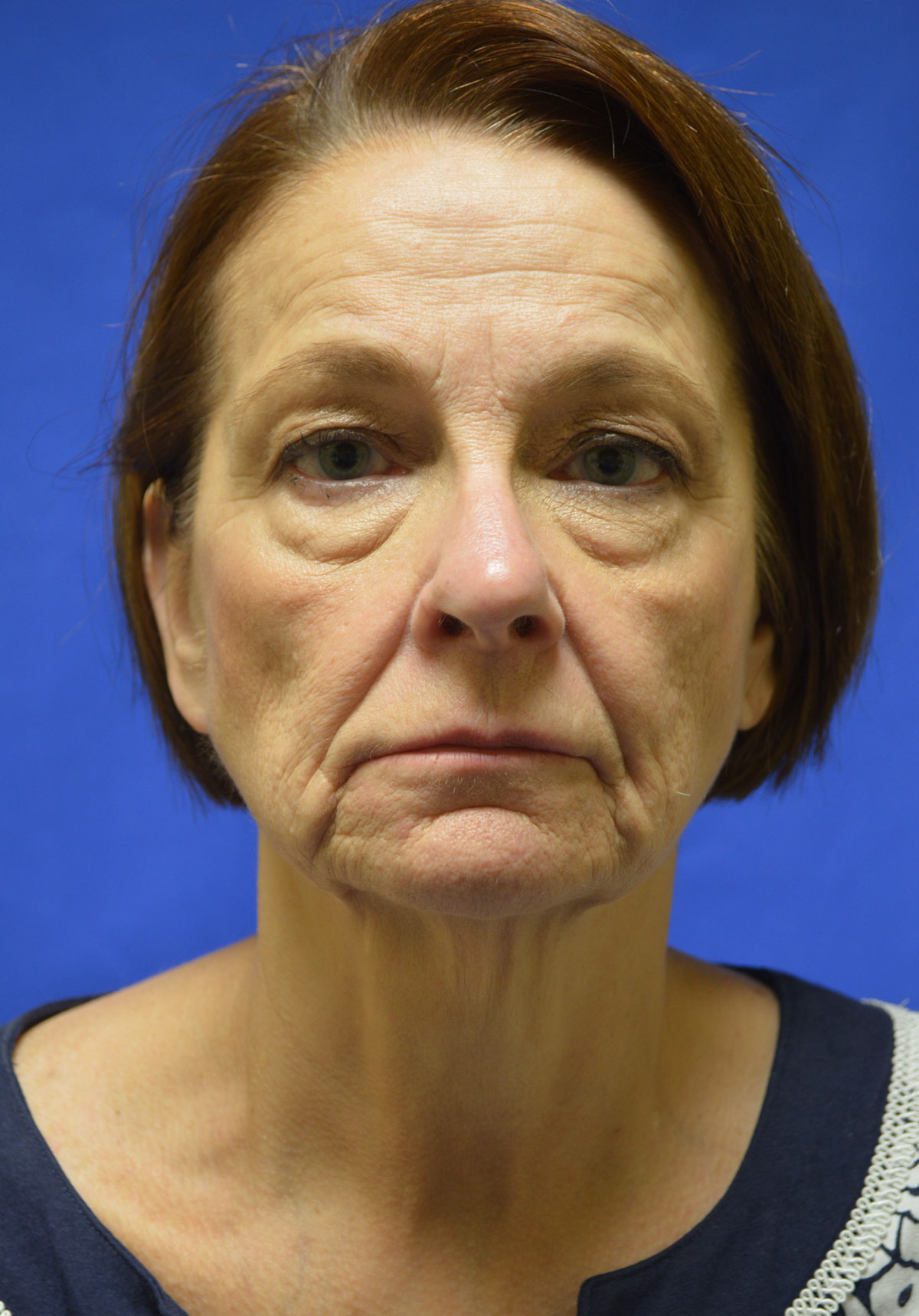 FaceLift-Shewmake-Before.jpg