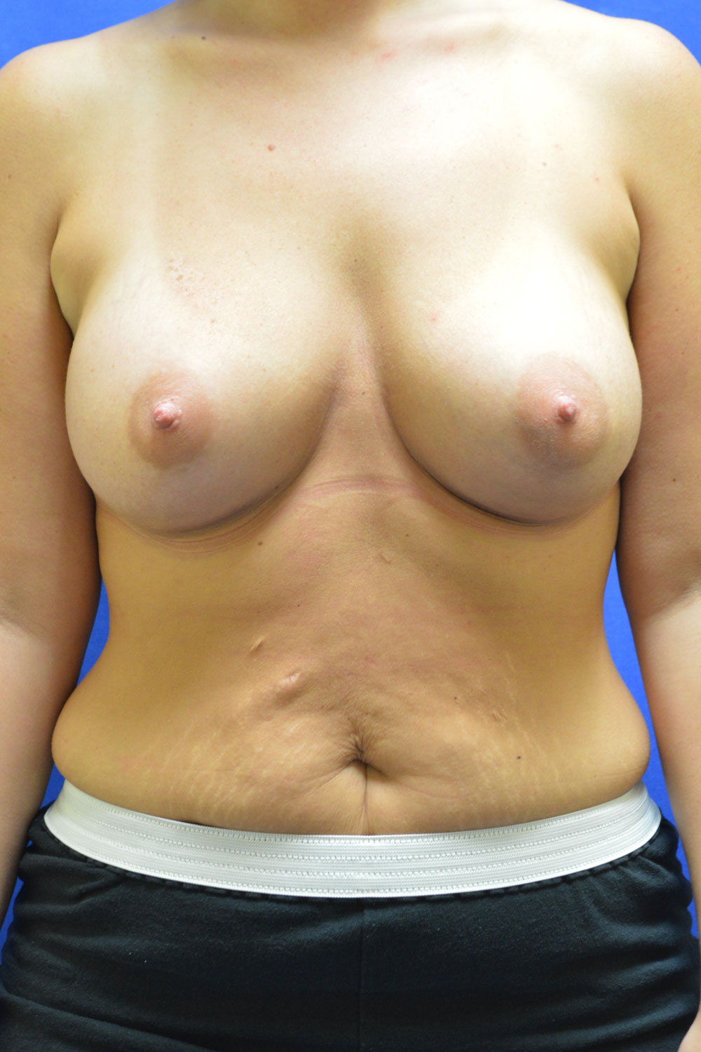 shewmake-breast-aug-after.jpg