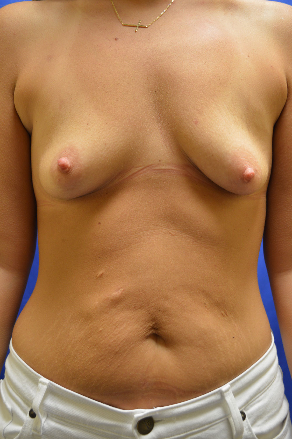 shewmake-breast-aug-before.jpg