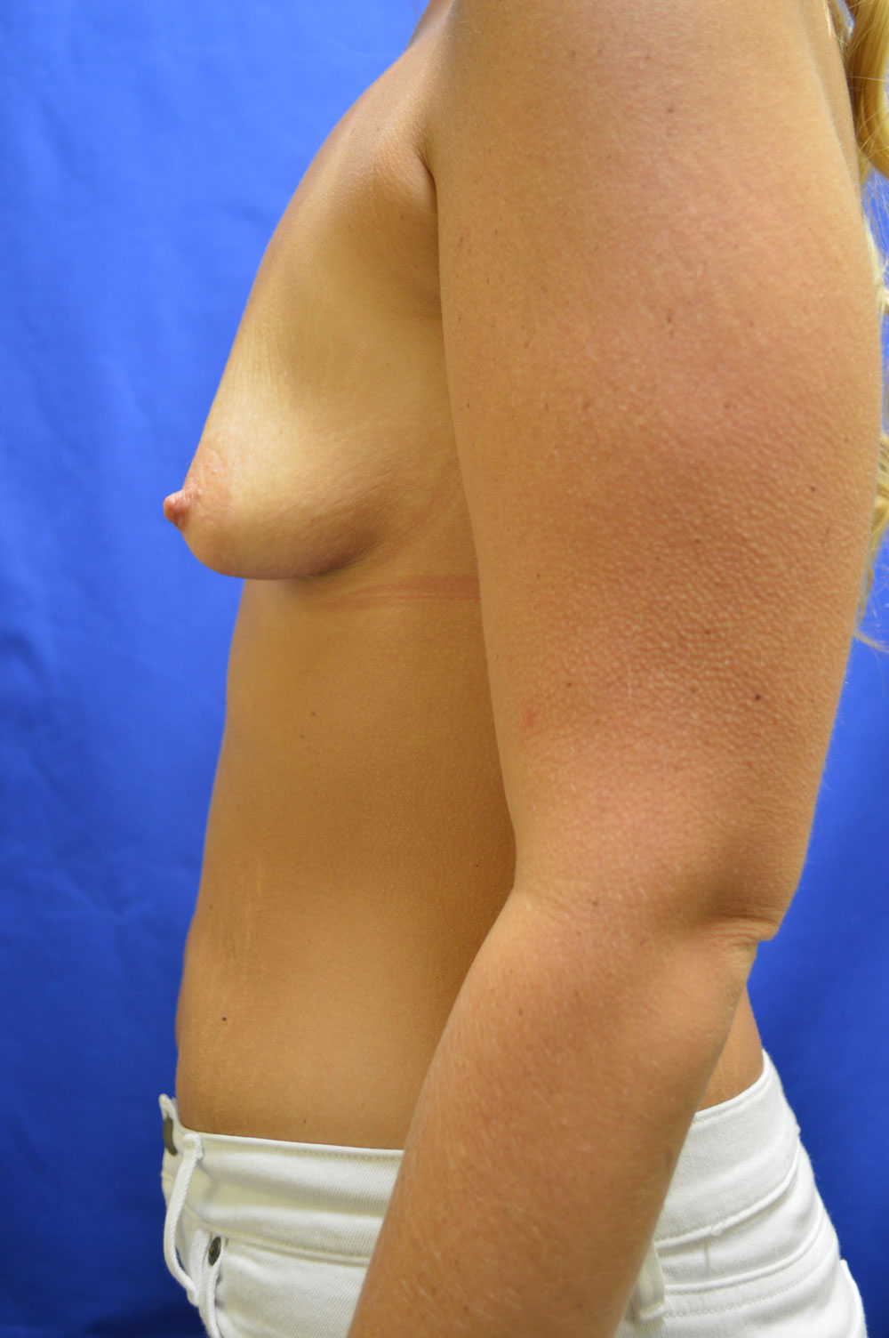shewmake-breast-aug2-before.jpg
