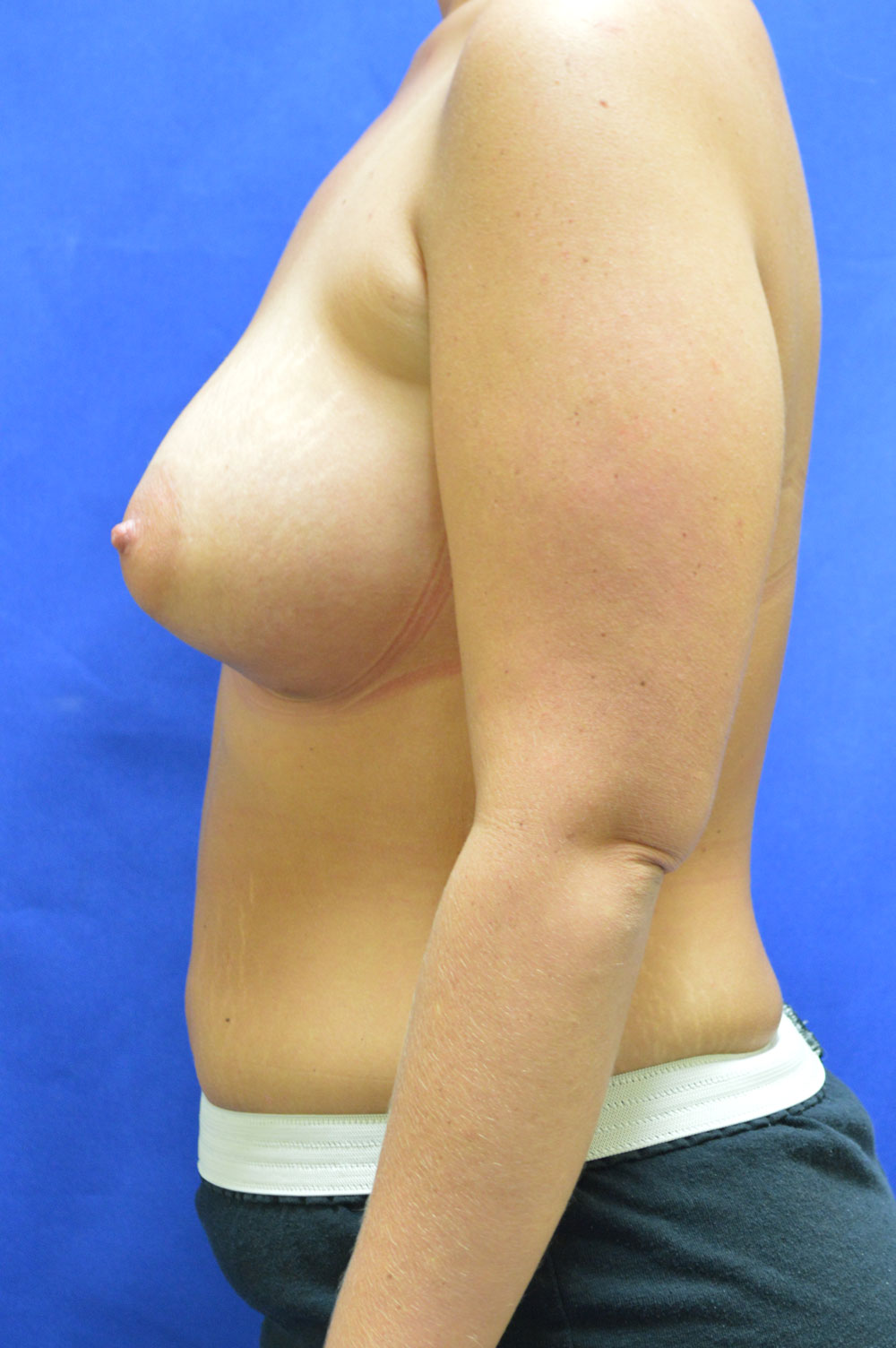 shewmake-breast-aug2-after.jpg
