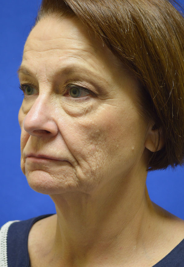 facelift-shewmake3.jpg