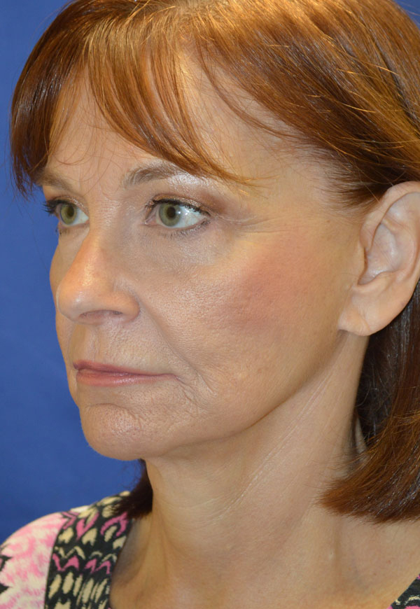 facelift-shewmake2.jpg